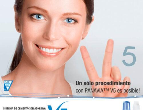 ¿Cómo elegir el cemento para restauración dental? Panavia V5