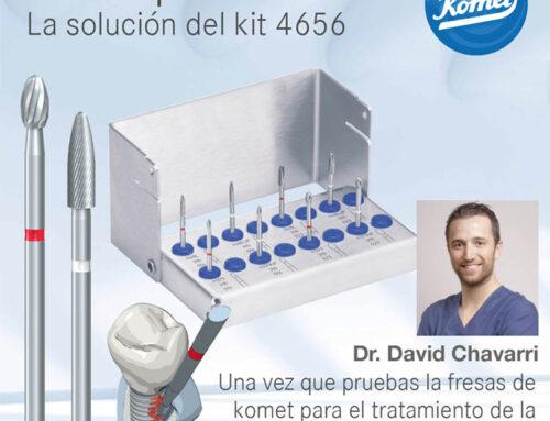 ¿Por qué utilizar Fresas Komet para una implantoplastia? Por el Dr. David Chavarri